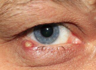 आंख में गुहेरी के कारण, लक्षण और घरेलू उपाय